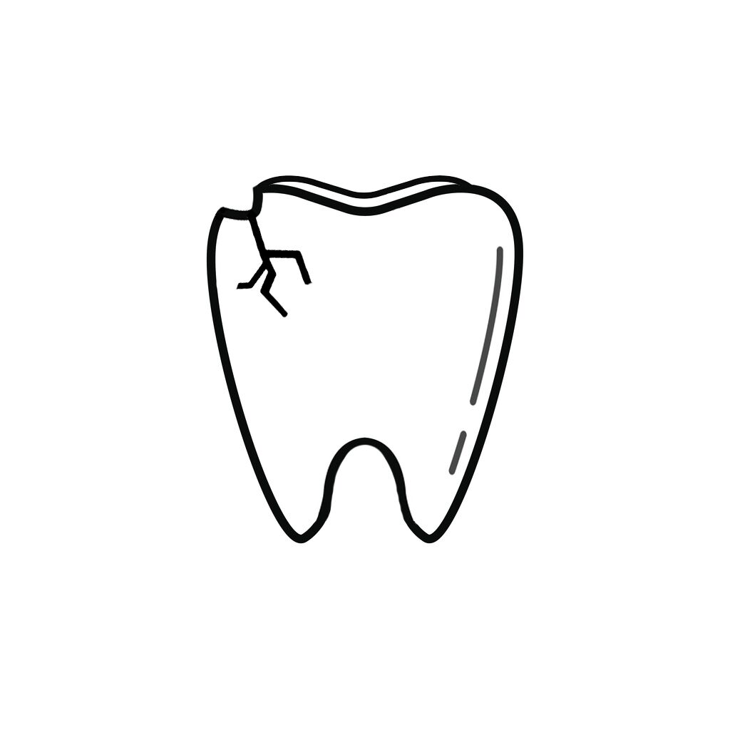 Wausa NE Dentist | I Chipped a Tooth! What Can I Do?